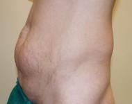 Brzuch przed operacją plastyki