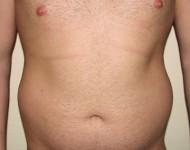 brzuch przed zabiegiem modelowania ciała
