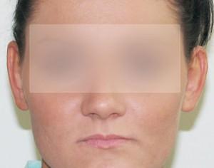korekta uszu - przed zabiegiem