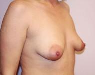 piersi przed zabiegiem plastyki
