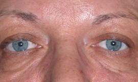 plastyka powiek zdjecie twarzy przed operacja