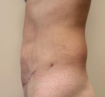Efekt po plastyce brzucha