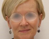 Kobieta po zabiegu usunięcia zmarszczek i podniesienia skóry twarzy