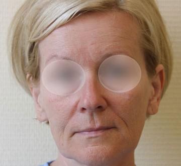 Przed operacją liftingu twarzy