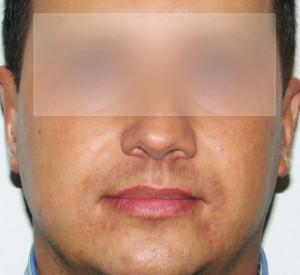 po operacji odstajacych uszu