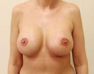 po operacji plastycznej wszczepienia implantów piersi