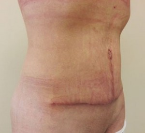 Po zabiegu usunięcia nadmiaru skóry