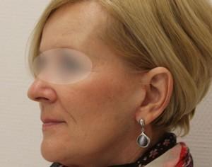 Profil twarzy kobiety po zabiegu liftingu