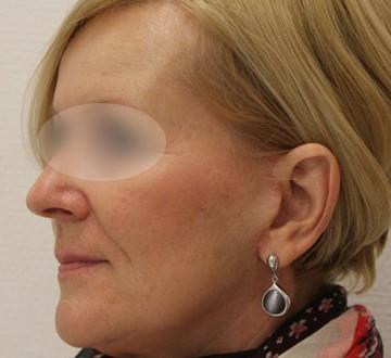 Profil twarzy kobiety po operacji liftingu twarzy