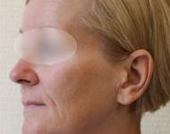 Profil twrazy kobiety przed ligtingiem