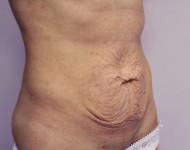 Przed zabiegiem usunięcia nadmiaru skóry
