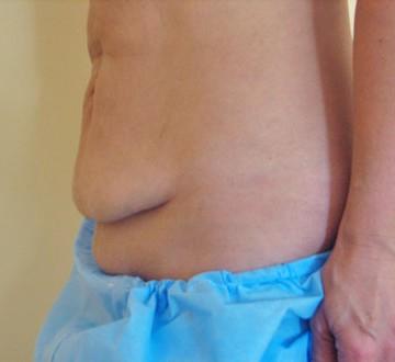 Przed operacją liftingu okolic brzucha