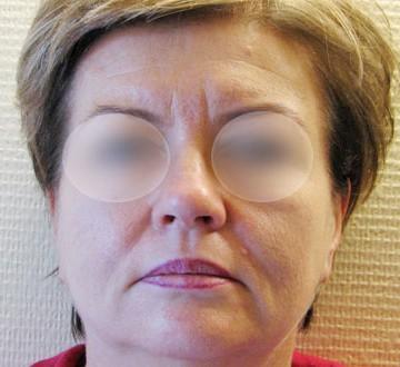 Kobieta przed operacją liftingu twarzy