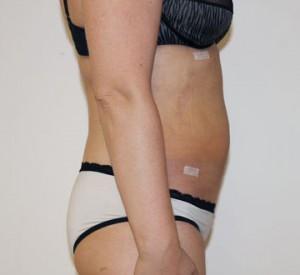brzuch po zabiegu modelowania ciała