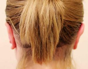zabieg korekty odstających uszu po zabiegu