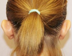 przed operacją plastyki uszu