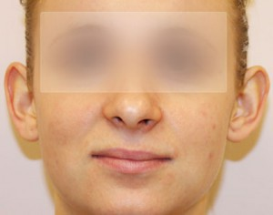 przed operacja w klinice Olender operacja uszu