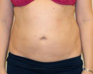 brzuch po liposukcji