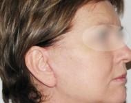 Profil twrazy po liftingu