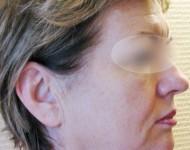 Profil twarzy przed liftingiem