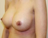 po powiększaniu piersi