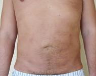 po operacji odsysania tłuszczu