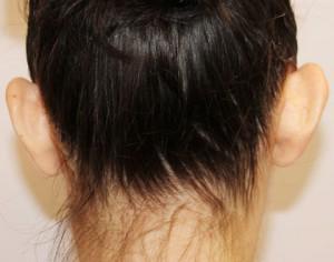 przed zabiegiem operacji odstających uszu