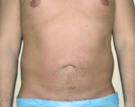 przed zabiegiem liposukcji