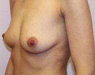 przed powiększaniem piersi