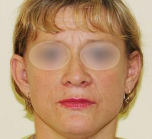 Kobieta po operacji liftingu twarzy