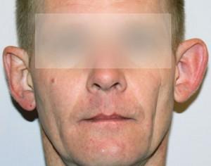 korekta uszu - zdjecie przed zabiegiem