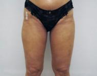 uda po zabiegu liposukcji