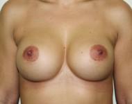 po operacji powiększania biustu
