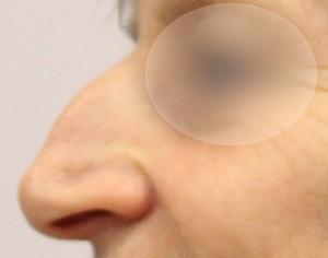 przed operacja korekty nosa