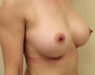 po zabiegu powiekszenia piersi