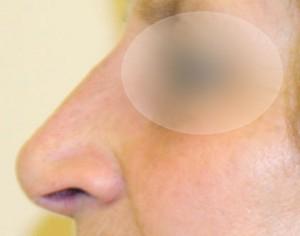 po zabiegu korekty nosa