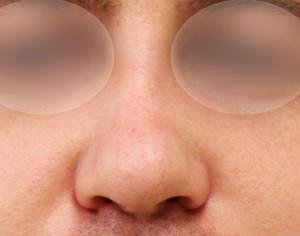 po operacji prostowania nosa