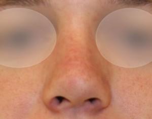 wyprostowany nos po operacji plastycznej nosa