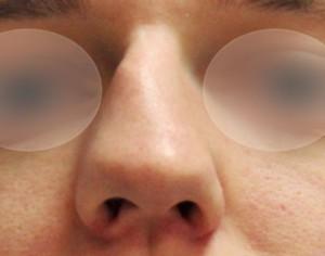 przed operacją nosa