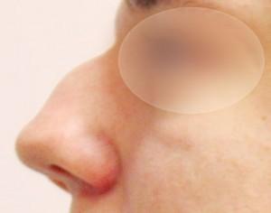 przed abiegiem korygującym nos