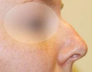 przed zabiegiem poprawy wyglądu nosa