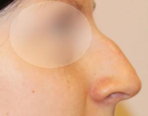 16-rhinoplastyka-przed-operacja.jpg