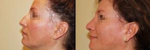 Zdjęcie twarzy z profilu - przed oraz po operacji nosa