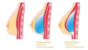 implanty_piersi02