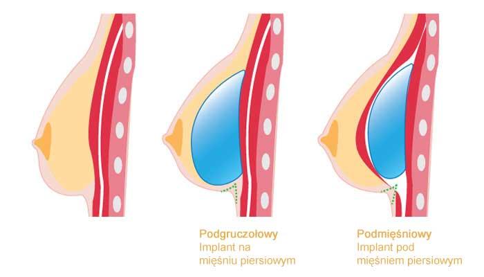 implanty piersi