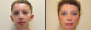 kobieta-przd-i-po-operacji-korekcji-uszu