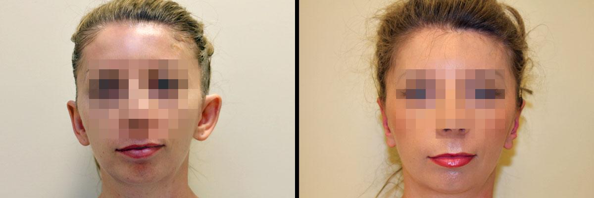 Uszy przed operacją i po - efekt zabiegu korekty uszu