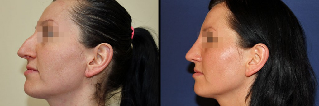 Twarz z profilu przed operacją i po operacji nosa