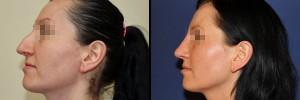 kobieta-przed-i-po-operacji-nosa