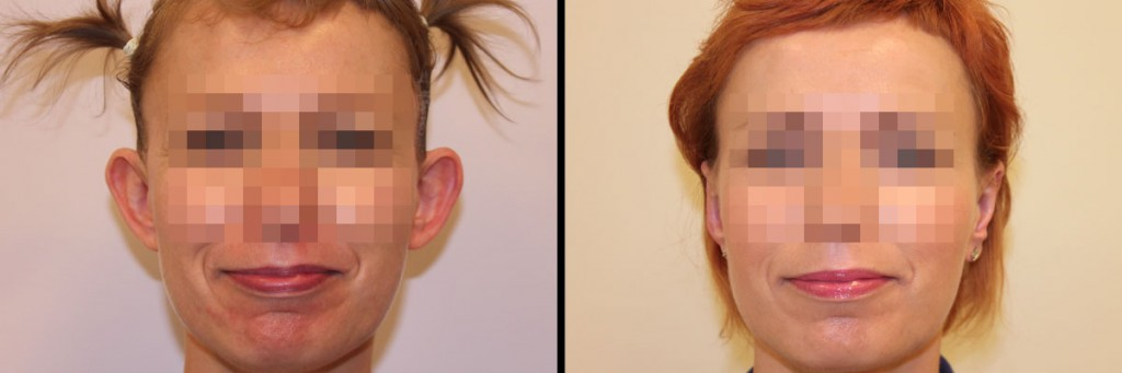 Efekt po operacji i uszy przed zabiegiem korekty